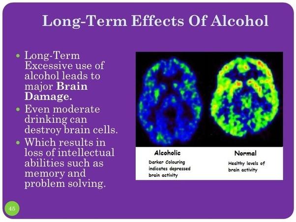 L'ús continuat d'alcohol causa danys en el cervell